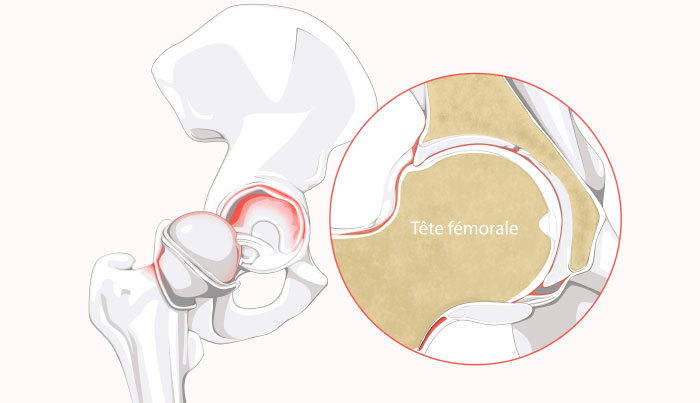 Hip labral tear and femoral head